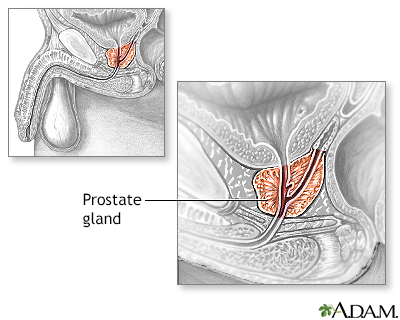 Idea prostate and sperm with
