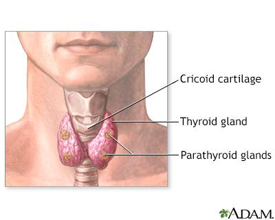 Parathyroid gland removal