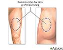 Skin graft - series