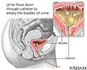 Bladder catheterization - female