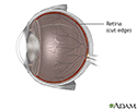 Retinal detachment repair - normal anatomy