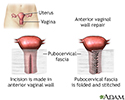Anterior vaginal wall repair
