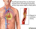 Stable angina