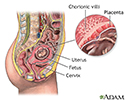 Chorionic villus sampling - normal anatomy