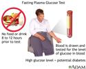 Fasting plasma glucose test