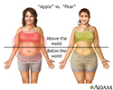 Different types of weight gain