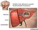 Amebic liver abscess
