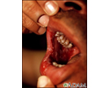 Pemphigus, vulgaris - lesions in the mouth