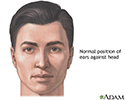 Ear surgery - series