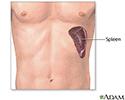 Spleen removal - series