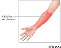 Cellulitis on the arm
