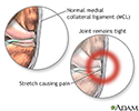 Medial collateral ligament pain