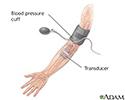 Duplex/doppler ultrasound test