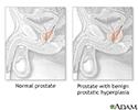 Hyperplasia
