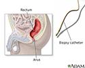 Rectal biopsy