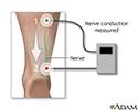 Nerve conduction test