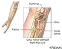 Ulnar nerve damage
