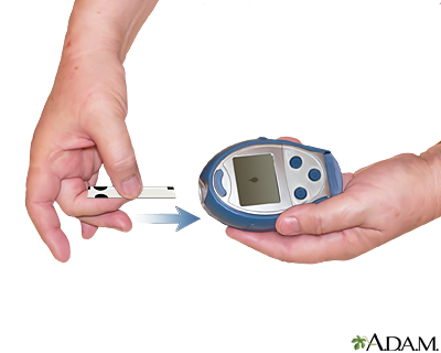 diabetic machine without strips