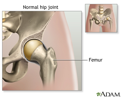 Taking Care Of Your New Hip Joint